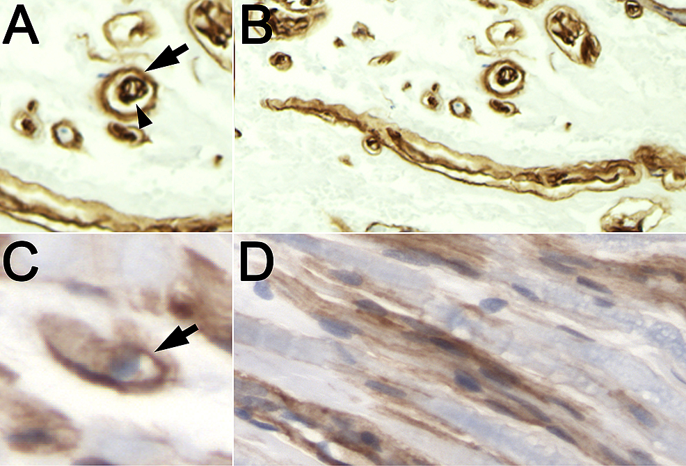 Double-lumen-laminin-pattern-compared-with-typical-laminin-pattern-(anti-laminin-IHC-and-hematoxylin)
