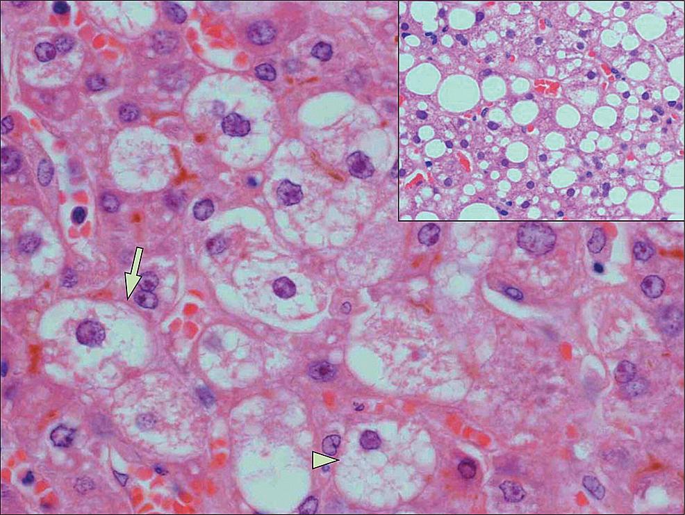 AFLP-Histology