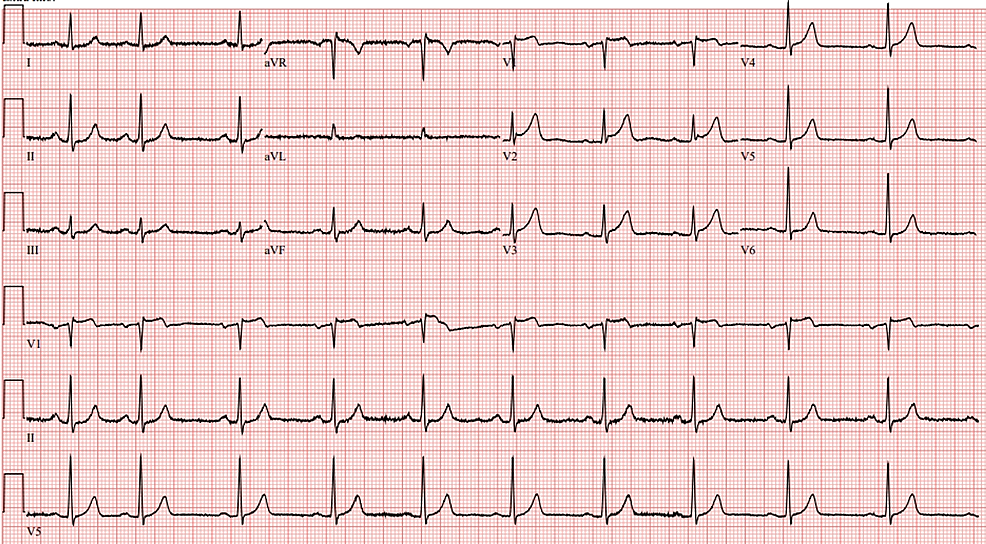 12-lead-electrocardiogram-for-the-patient-demonstrating-<1-mm-ST-elevation-in-the-anterior-leads.