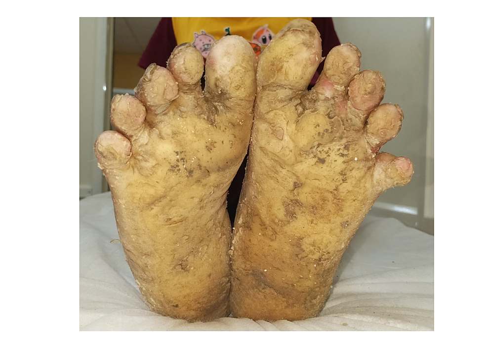 Transgradient-straw-yellow-plantar-keratoderma-involving-the-soles-and-toes-of-the-foot-with-well-defined-margins-in-the-male.