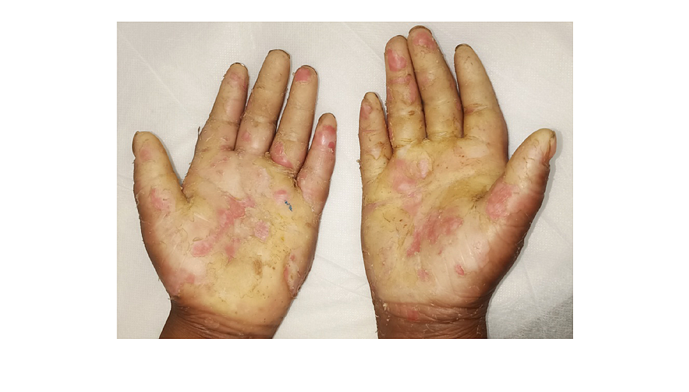 Straw-yellow-palmoplantar-keratoderma-with-well-defined-margins-and-loss-of-dermatoglyphs.-Also,-the-palm-was-thickened-with-a-sclerotic-appearance-in-the-male.