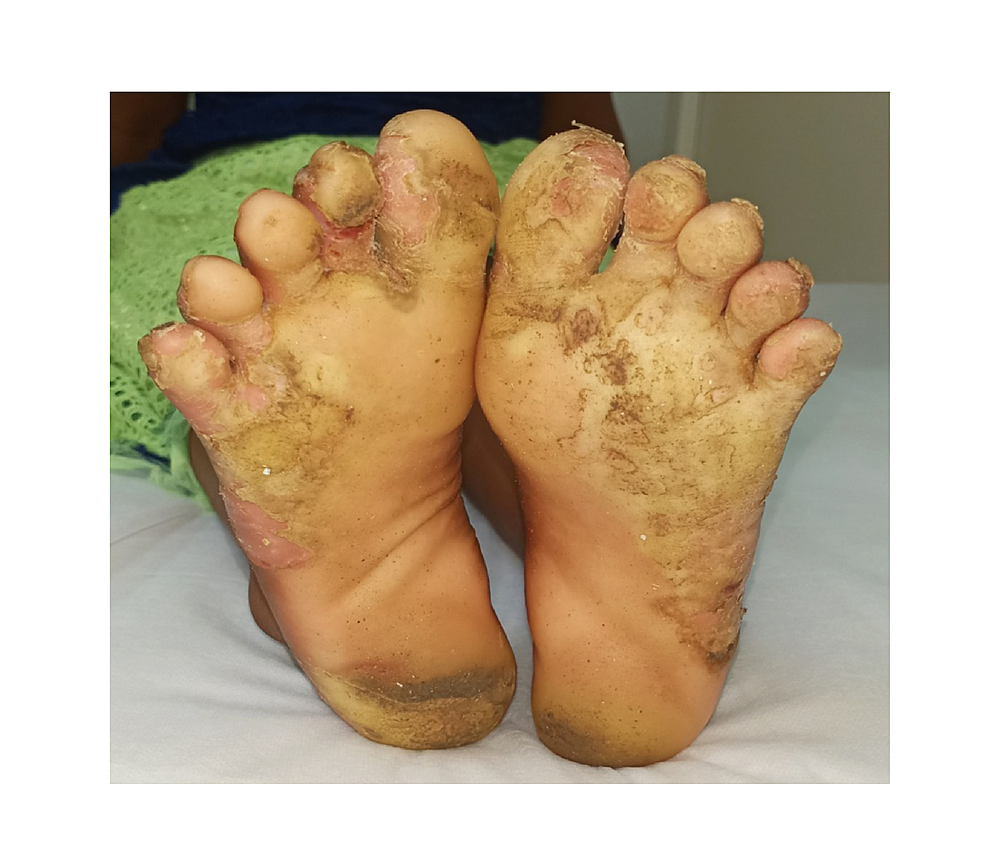 Straw-yellow-plantar-keratoderma-on-the-foot-in-female-sibling-which-is-less-severe-when-compared-to-the-male.