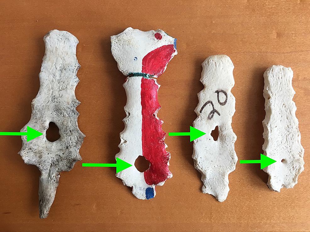 Examples-of-Sternal-Foramina-(arrowheads)