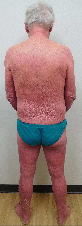 Psoriasis-presenting-as-erythroderma