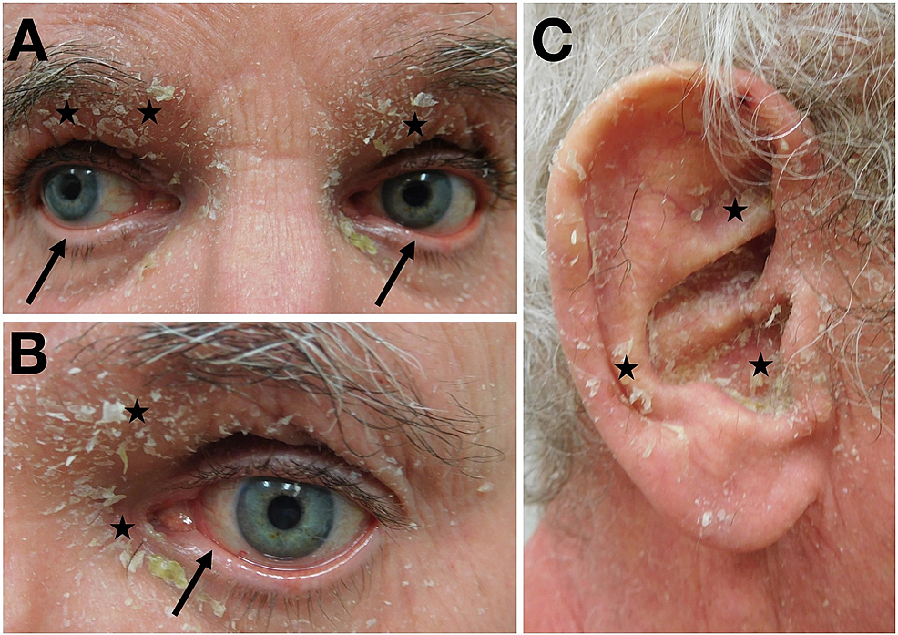 Erythrodermic-psoriasis-affecting-the-eyes-and-ears
