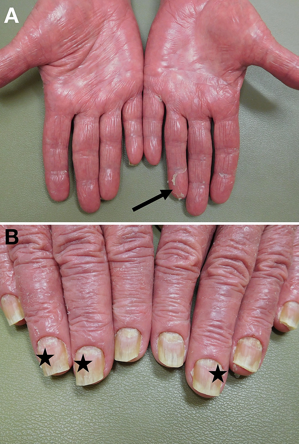 Erythrodermic-psoriasis-of-the-palms-and-fingernails