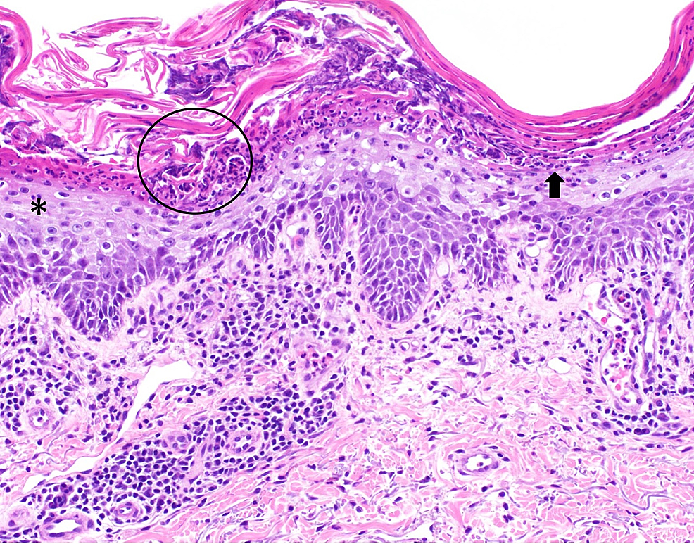 Pathologic-features-of-erythrodermic-psoriasis-from-a-right-upper-chest-skin-biopsy
