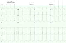 Article box 748b4230daec11e7b9c6b97b870caf0a ekg