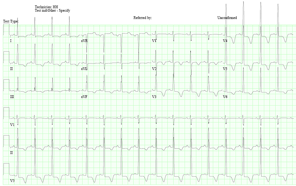 Electrocardiogram:-normal-sinus-rhythm,-left-ventricular-hypertrophy,-and-T-wave-inversions-in-V2-V5