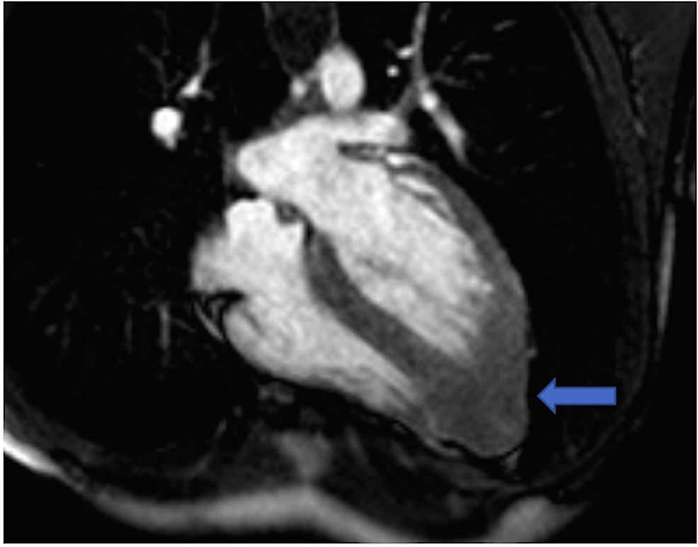 Cardiac-MRI:-asymmetrical-left-ventricular-hypertrophy-characterized-by-basal,-mid-inferoseptal,-and-apical-thickness-(arrow)