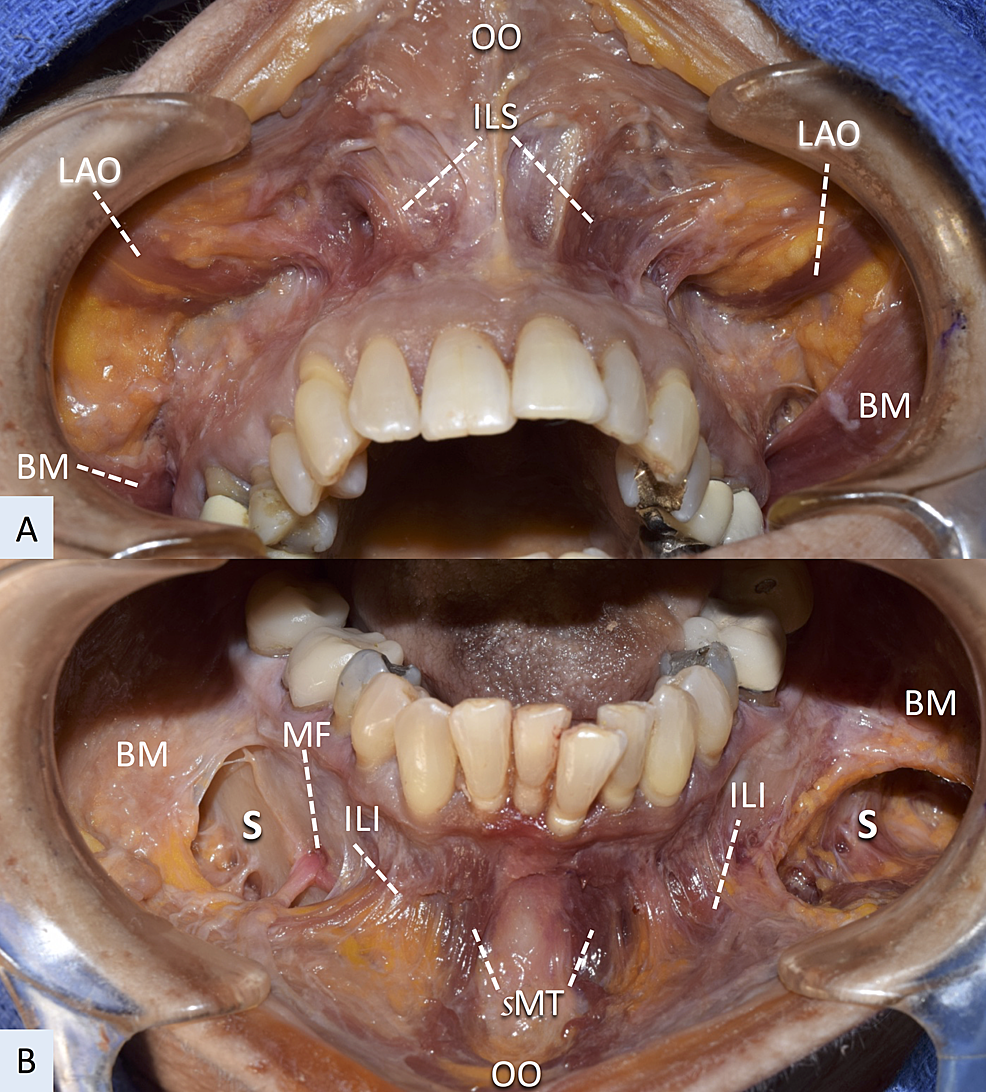 Intraoral-dissection-of-the-mimetic-muscles-using-a-fresh-cadaver