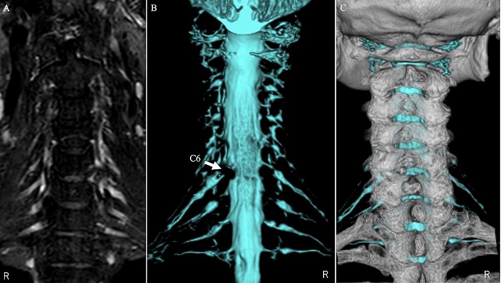 CT/MRI-fusion-images-of-case-1