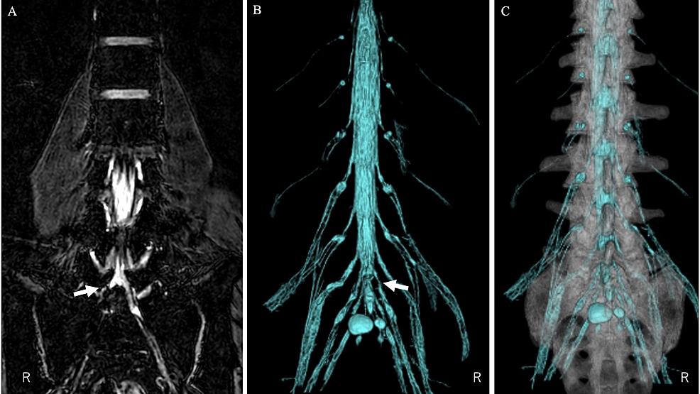 CT/MRI-fusion-image-of-case-2