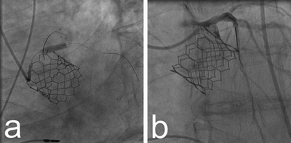a)-Placement-of-a-stent-in-the-LMCA;-b)-subsequent-patency.