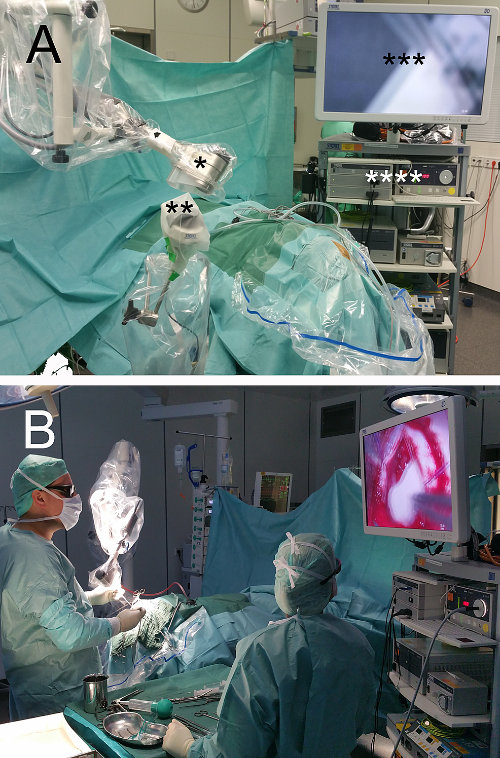 Operating-room-set-up-and-exoscope-during-surgery