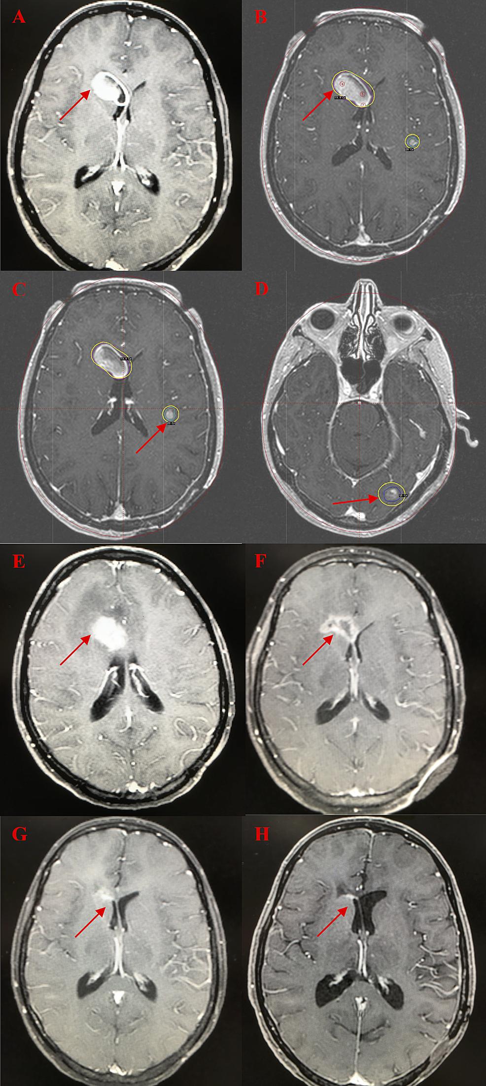 Serial-Brain-MRI-Images