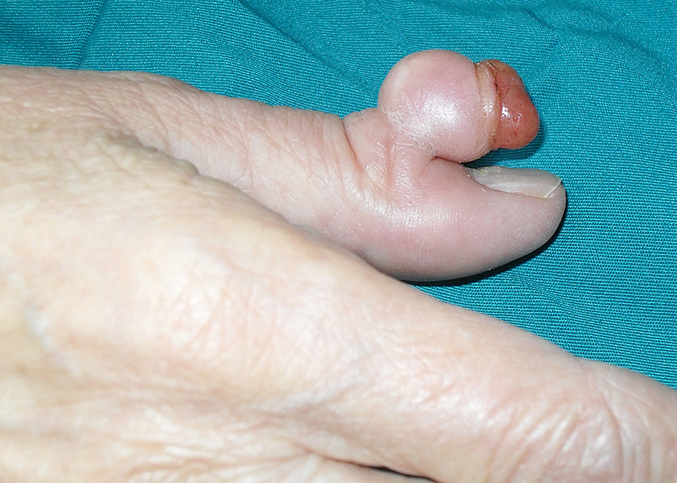 Preoperative-photograph-of-a-pedunculated-DFSP