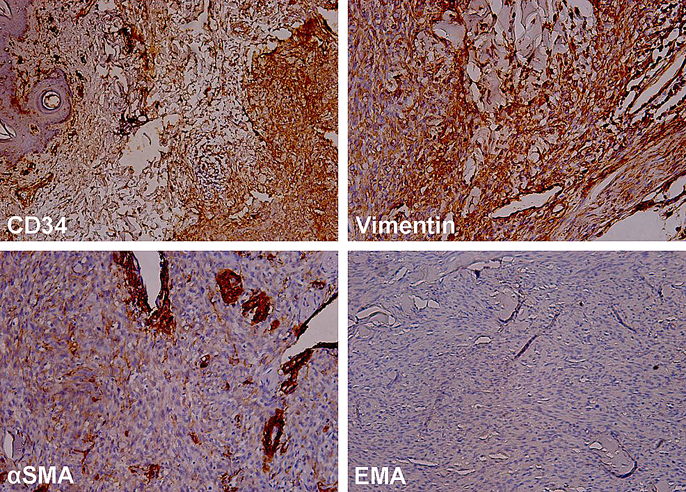 An-immunohistochemical-examination-of-DFSP-revealed-a-strong-expression-(brown-red-color)-of-CD34-and-vimentin,-positivity-(brown-red-color)-for-α-SMA-in-blood-vessel-walls-and-single-cells,-and-a-negative-reaction-for-EMA.