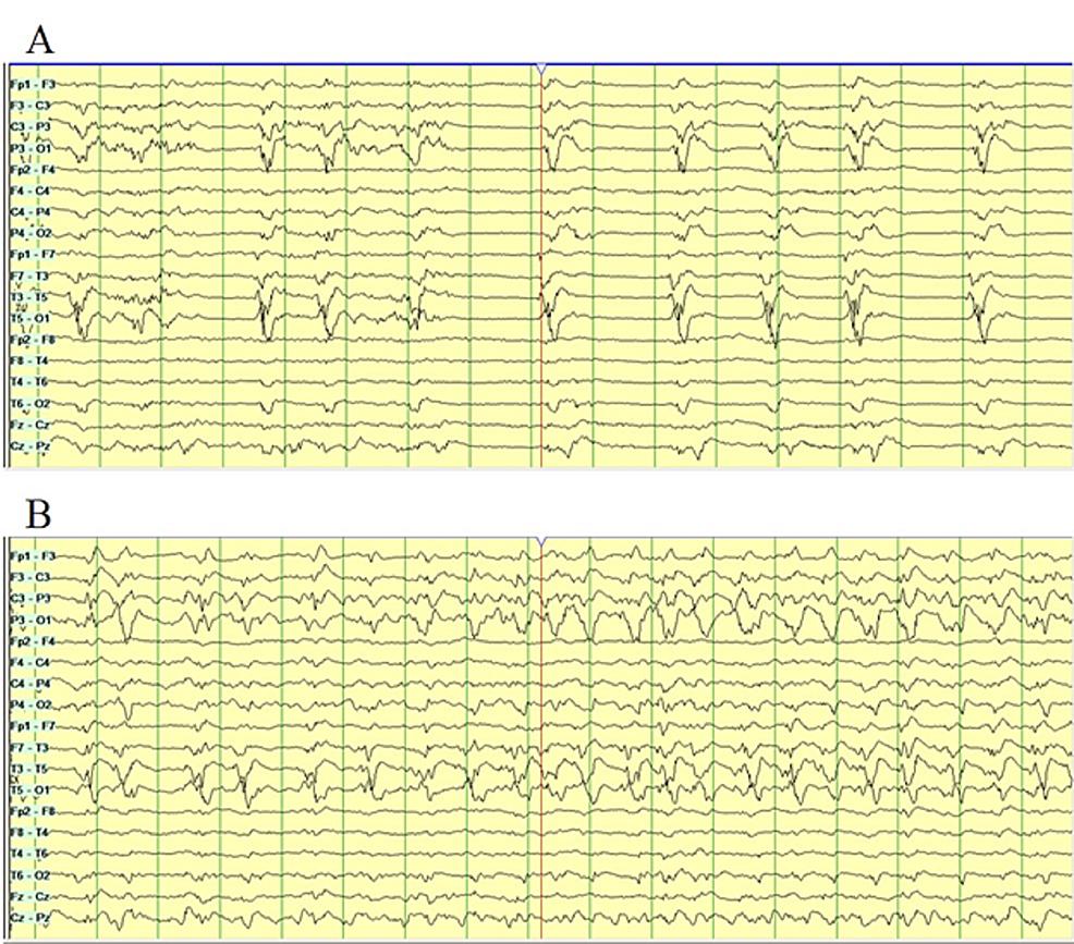 Continuous-electroencephalography-(CEEG)