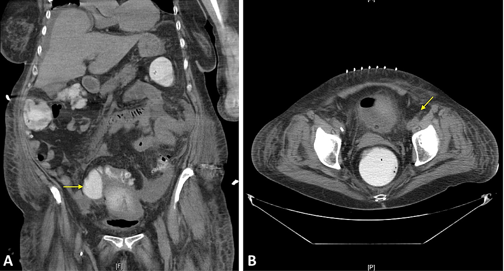 Diverticular-Abscess-on-Computed-Tomography-(CT)-Imaging
