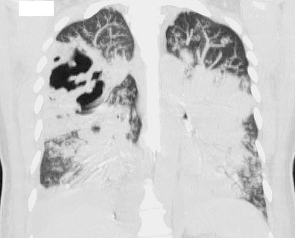 Repeat-computed-tomography-(CT)-chest-(coronal-view)-showing-worsening-bilateral-pneumonia.