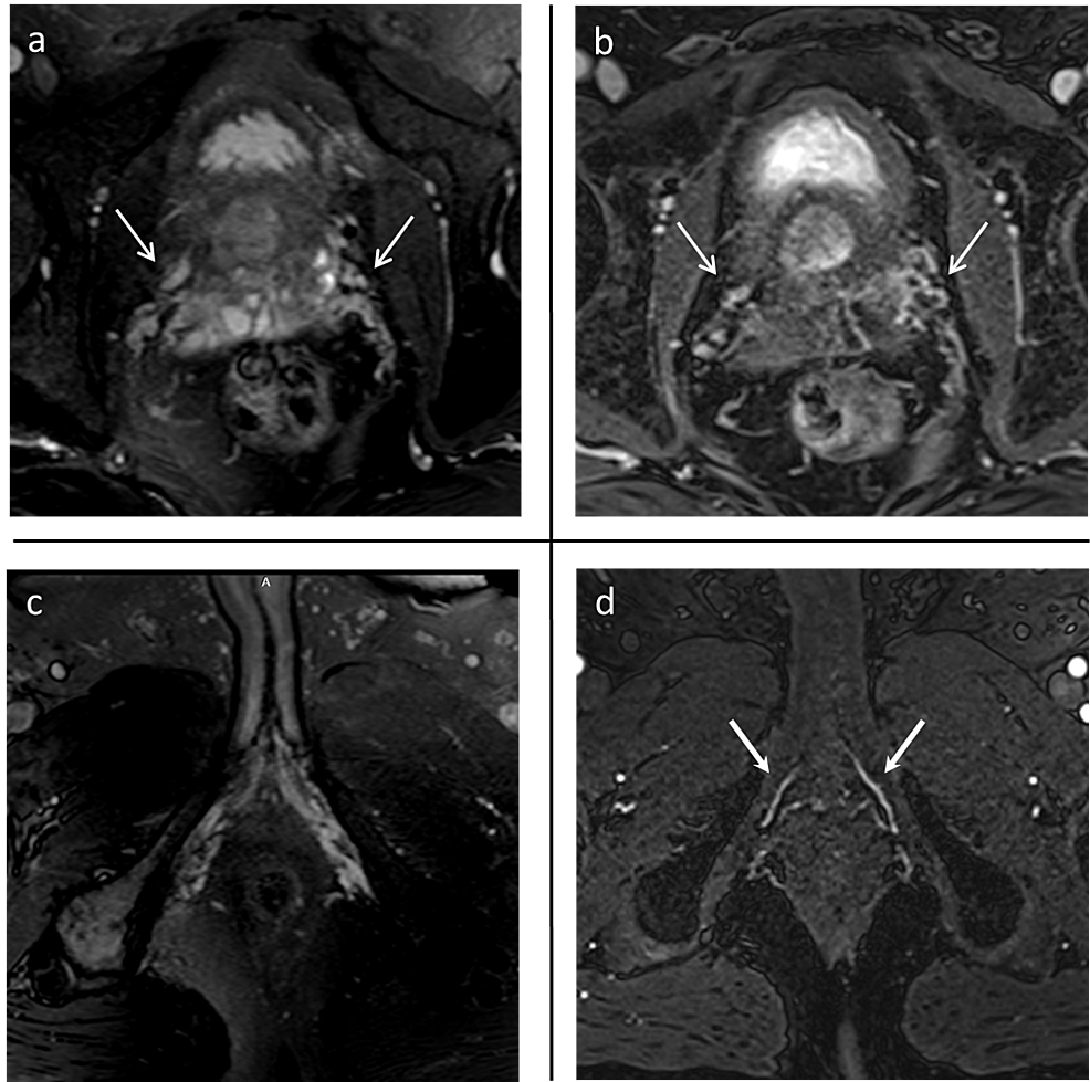MR-images-in-a-67-year-old-man-with-prostate-carcinoma-(Case-6)