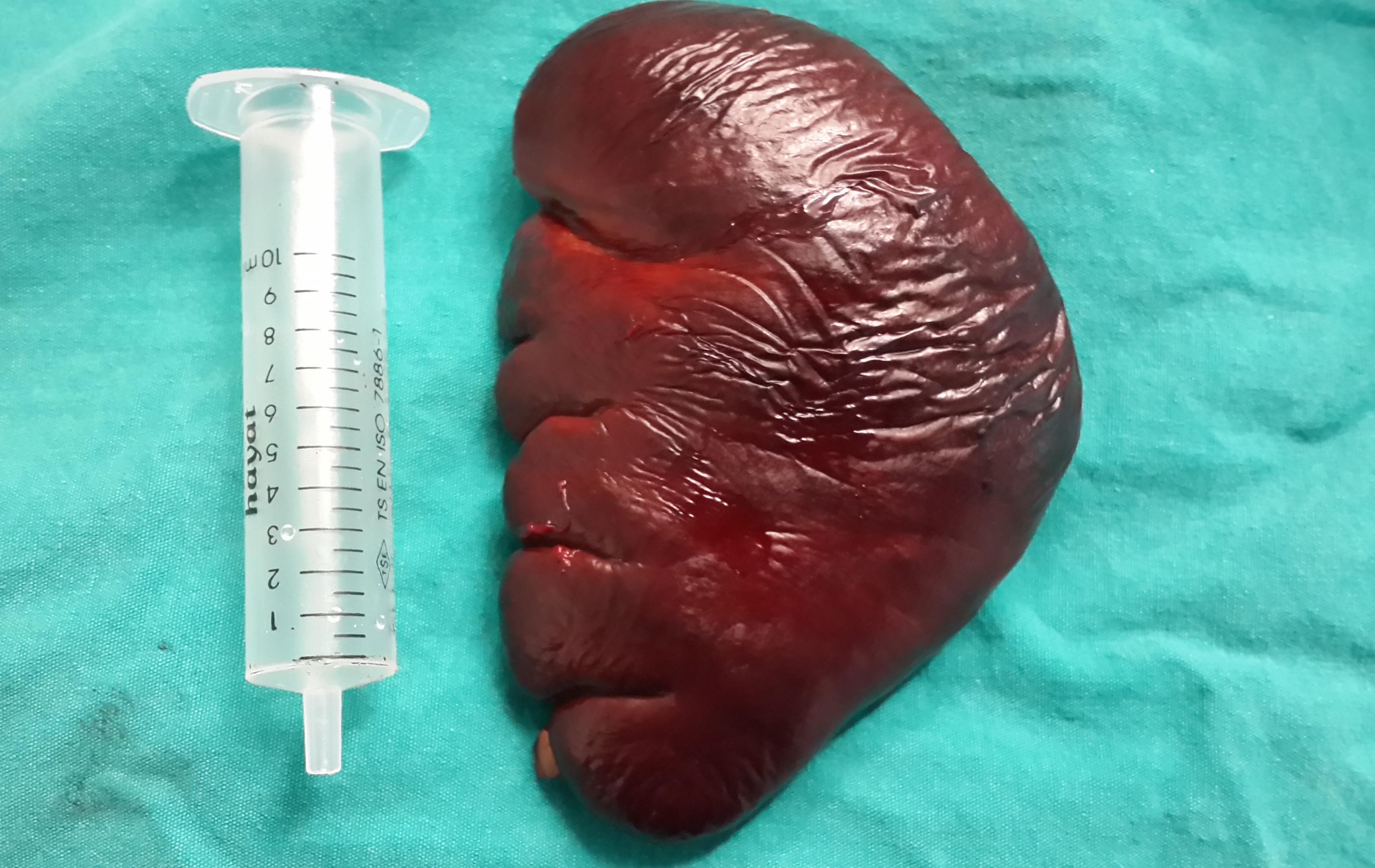 cureus transvaginal mini laparoscopic splenectomy