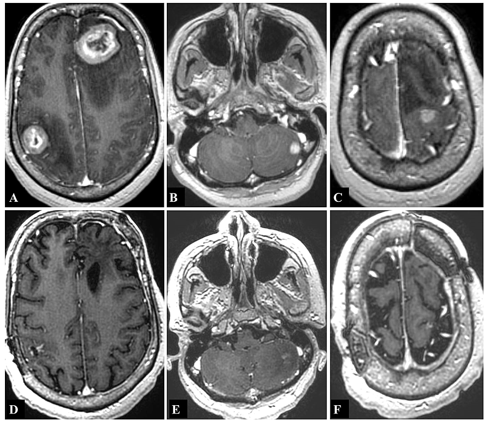T1-weighted-magnetic-resonance-imaging-(MRI)-with-contrast-showing-contrast-enhancing-lesions