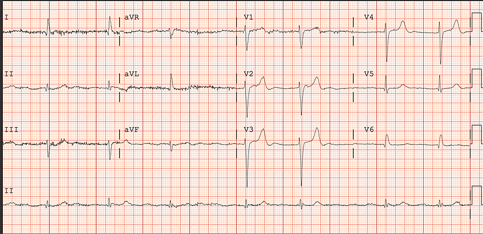 EKG-on-admission-showing-atrial-fibrillation-with-slow-ventricular-rate