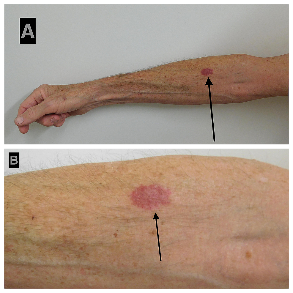 Acquired-elastotic-hemangioma:-right-forearm-of-a-63-year-old-man