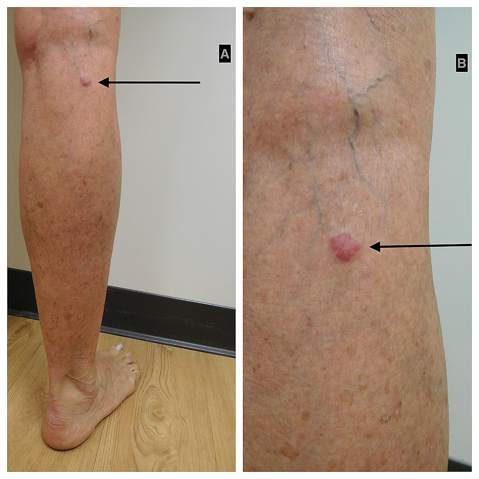 Acquired-elastotic-hemangioma:-right-calf-of-a-65-year-old-woman