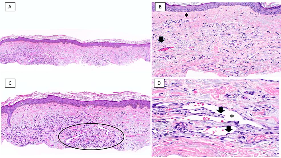 Acquired-elastotic-hemangioma:-pathology-features