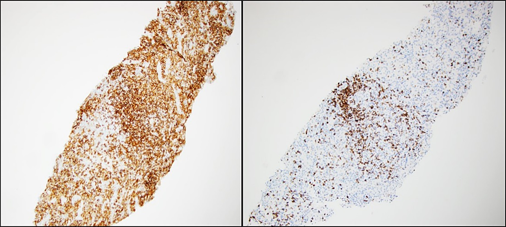 CD20-stained-(Left-panel)-and-CD3-stained-(Right-panel)-liver-biopsy-sections-showing-B-cell-aggregates-and-T-lymphocytes,-respectively.