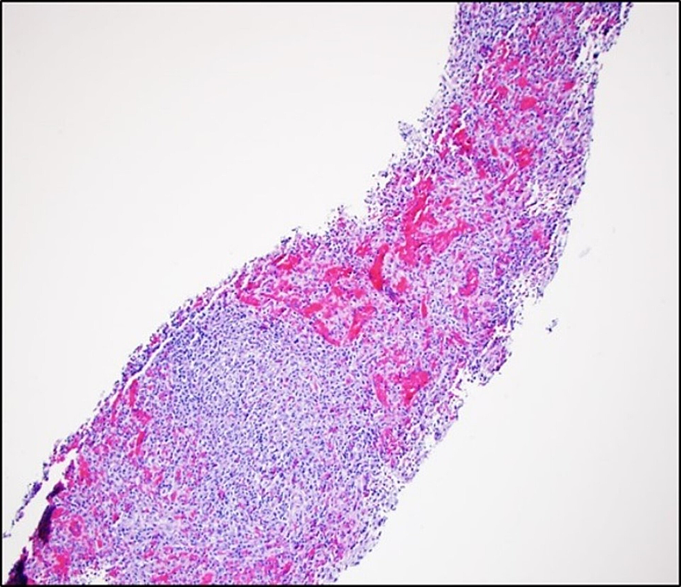 Hematoxylin-and-eosin-stained-liver-biopsy-sections-revealing-dilated-capillaries-and-lymphoid-aggregates-that-resemble-splenic-red-and-while-pulp-areas,-respectively.