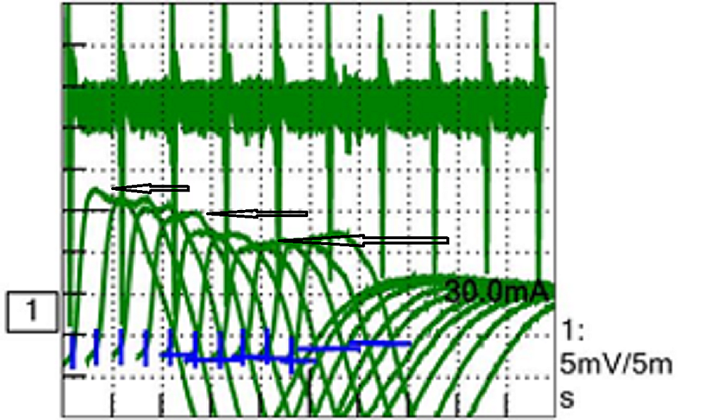 Sequential-decrement-in-compound-motor-action-potential-(CMAP).