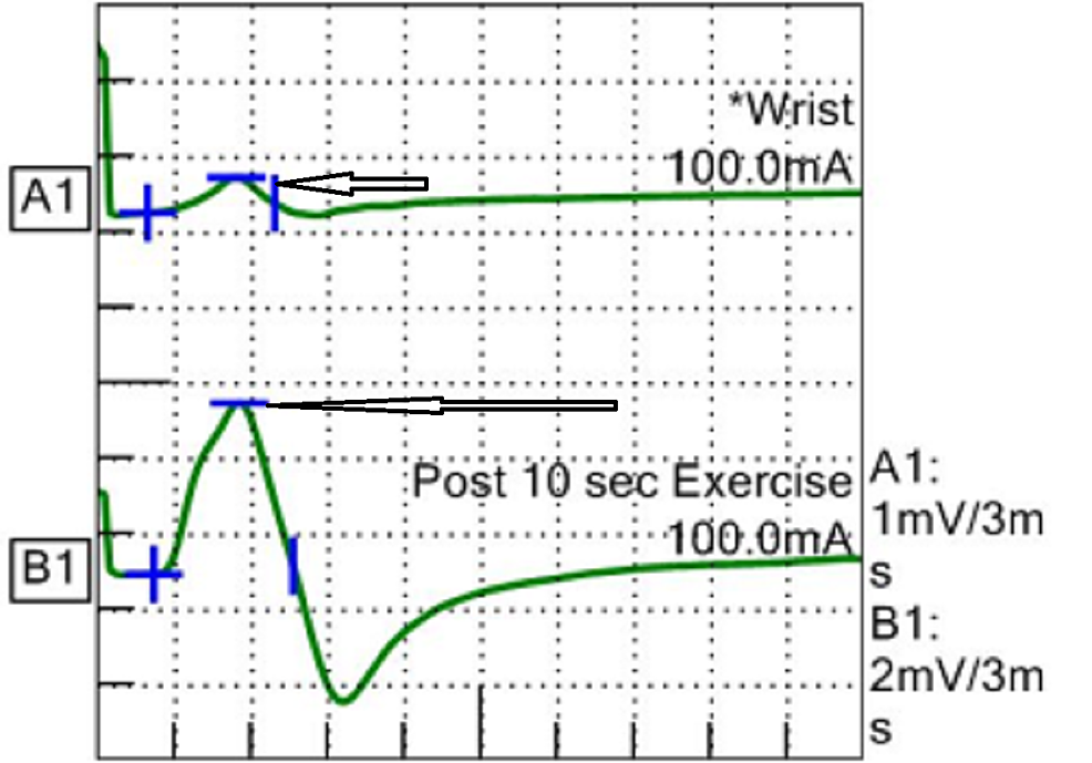 Improvement-in-compound-motor-action-potential-(CMAP).
