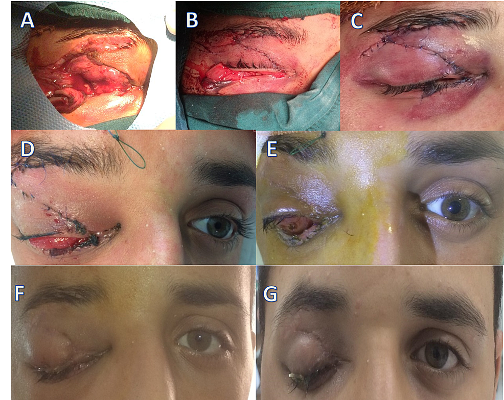 The-pre-operative,-intra-operative-and-post-operative-images.
