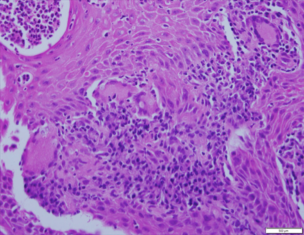 -Biopsy-of-the-intranasal-squamous-mucosa-(Hematoxylin-and-eosin-stain)-showing-acute-inflammation-and-multiple-giant-cells