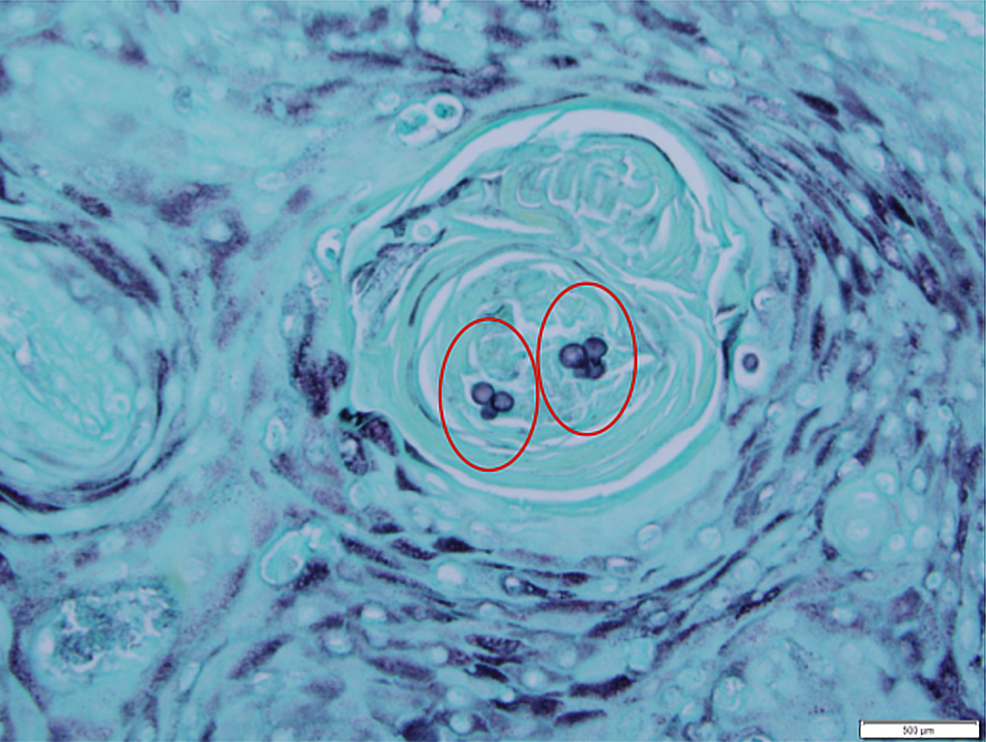 Grocott's-methenamine-silver-(GMS)-stain-showing-budding-cells-of-blastomycosis-(red-circles)