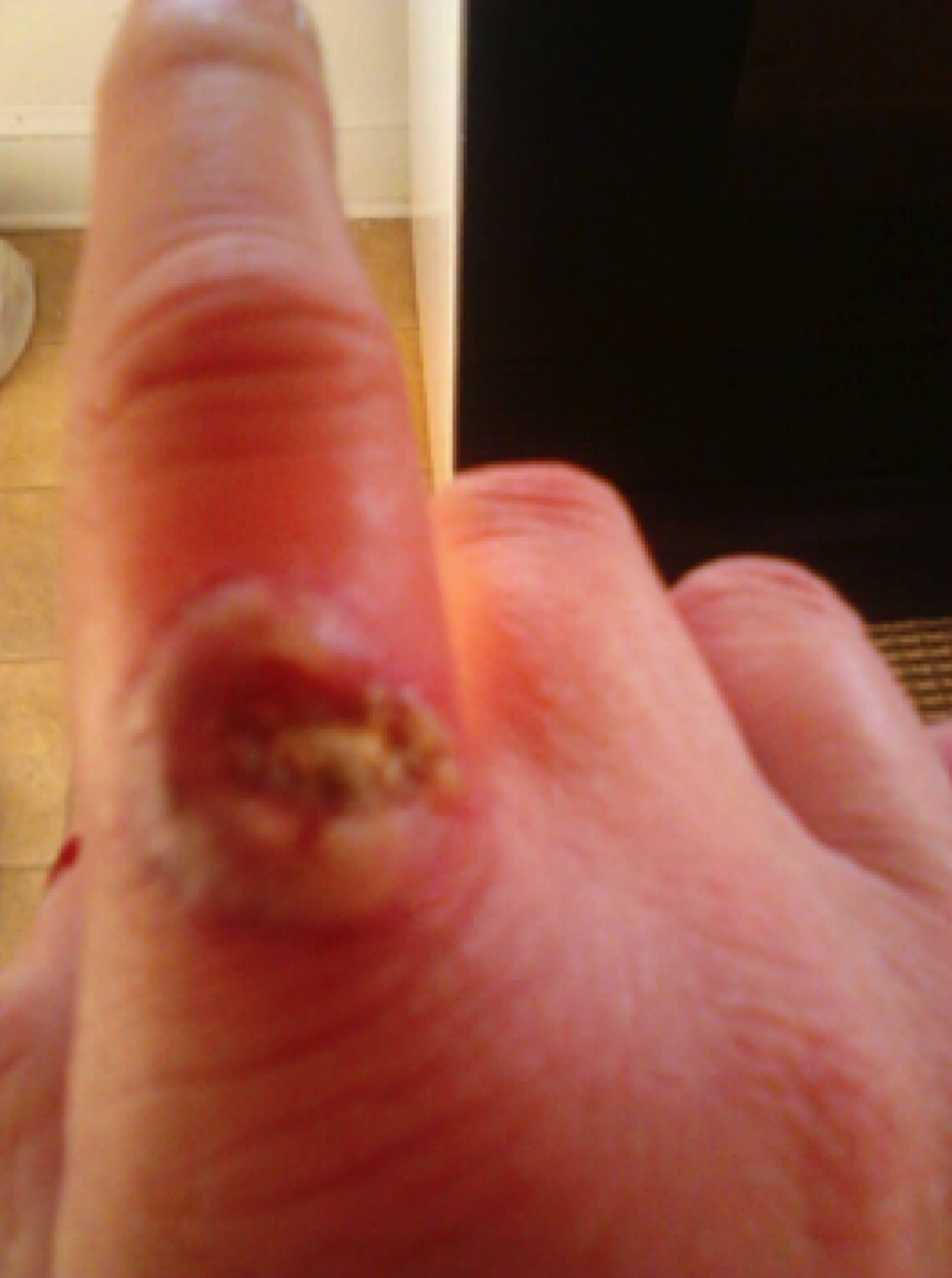 Ulcerating-blastomycosis-lesion-on-the-right-index-finger,-observed-during-physical-exam