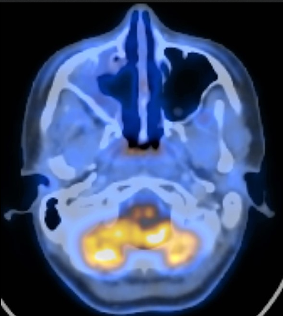 Positron-emission-tomography/computed-tomography-(PET/CT)-at-six-months-postoperatively-shows-no-signs-of-recurrent-or-residual-disease