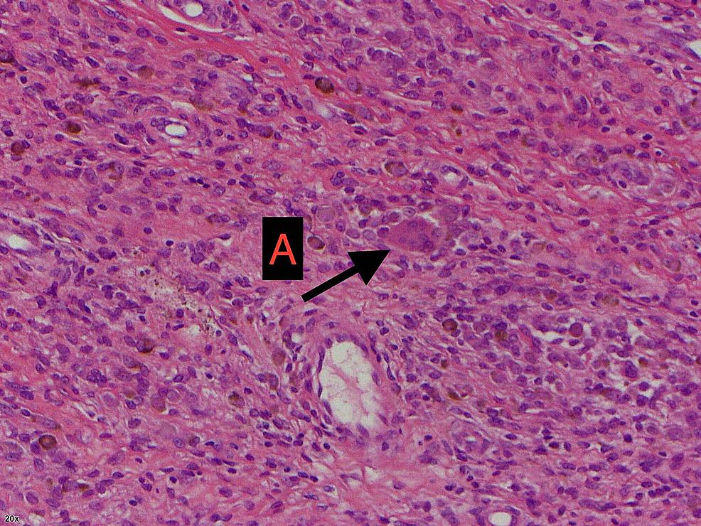 Histology-slide