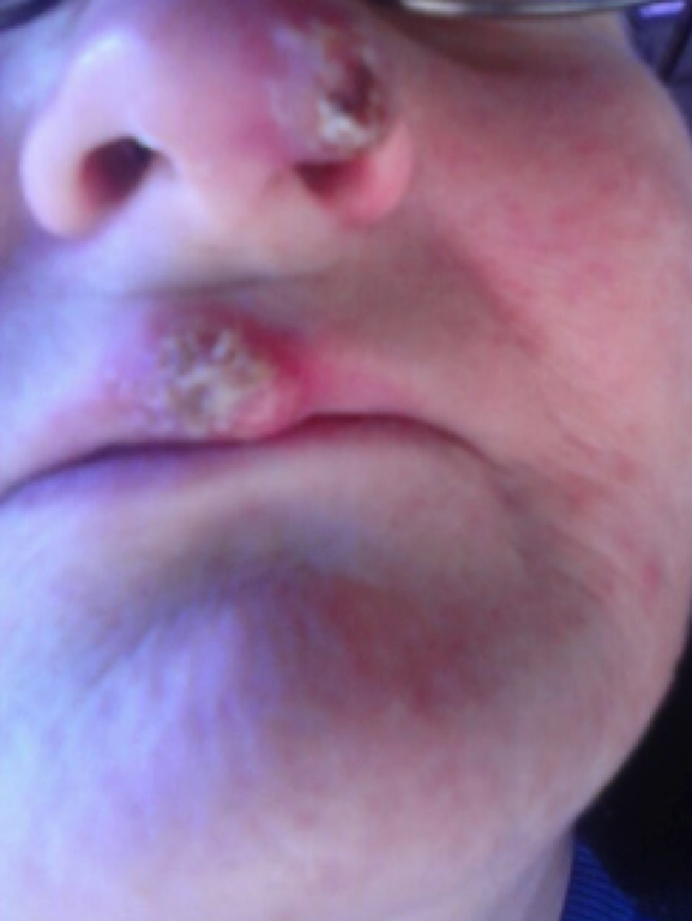 Blastomycosis-lesion-on-left-intranasal-passageway-and-middle-of-upper-lip,-observed-during-physical-examination