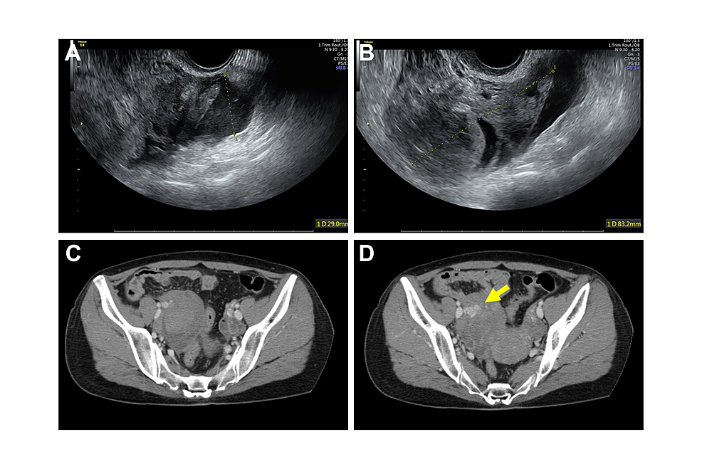 Photographs-of-transvaginal-ultrasound-and-images-of-computed-tomography-(CT)-of-the-patients-with-acute-abdomen-after-oocyte-retrieval-at-hospital-transport.