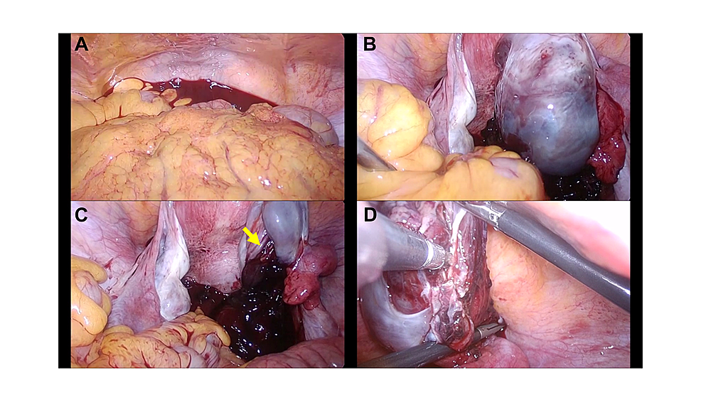 Photographs-of-laparoscopic-findings-in-a-patient-with-acute-abdomen-after-oocyte-retrieval.
