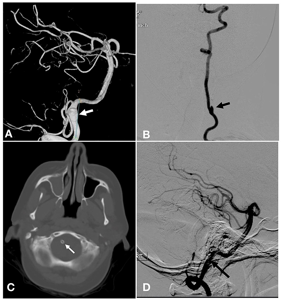 Cerebral-arteriogram-and-noncontrast-computed-tomography-CT-head-demonstrating-right-sided-intracranial-vertebral-artery-aneurysm-treated-with-Pipeline-embolization-device.