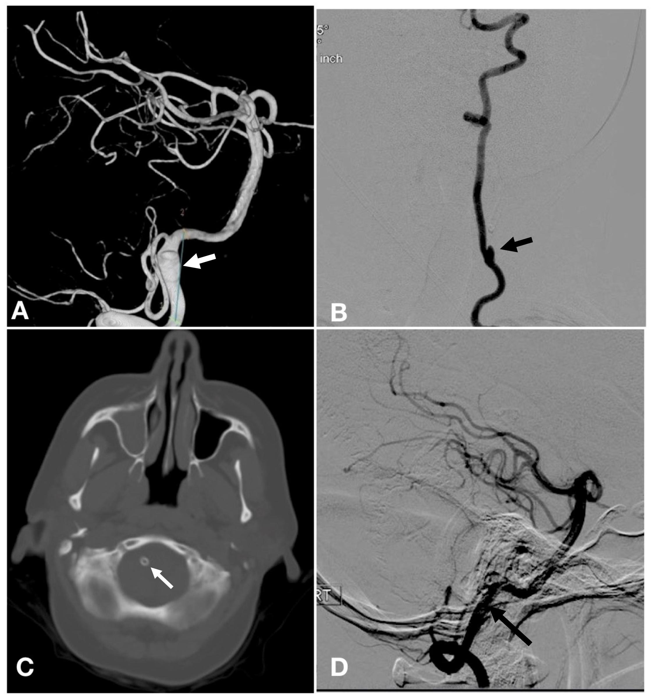 Cerebral arachnoiditis of the brain: symptoms, treatment, consequences
