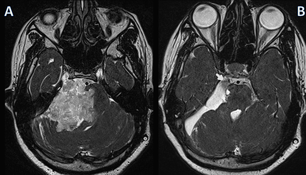 Preoperative-and-postoperative-magnetic-resonance-imaging-(MRI)