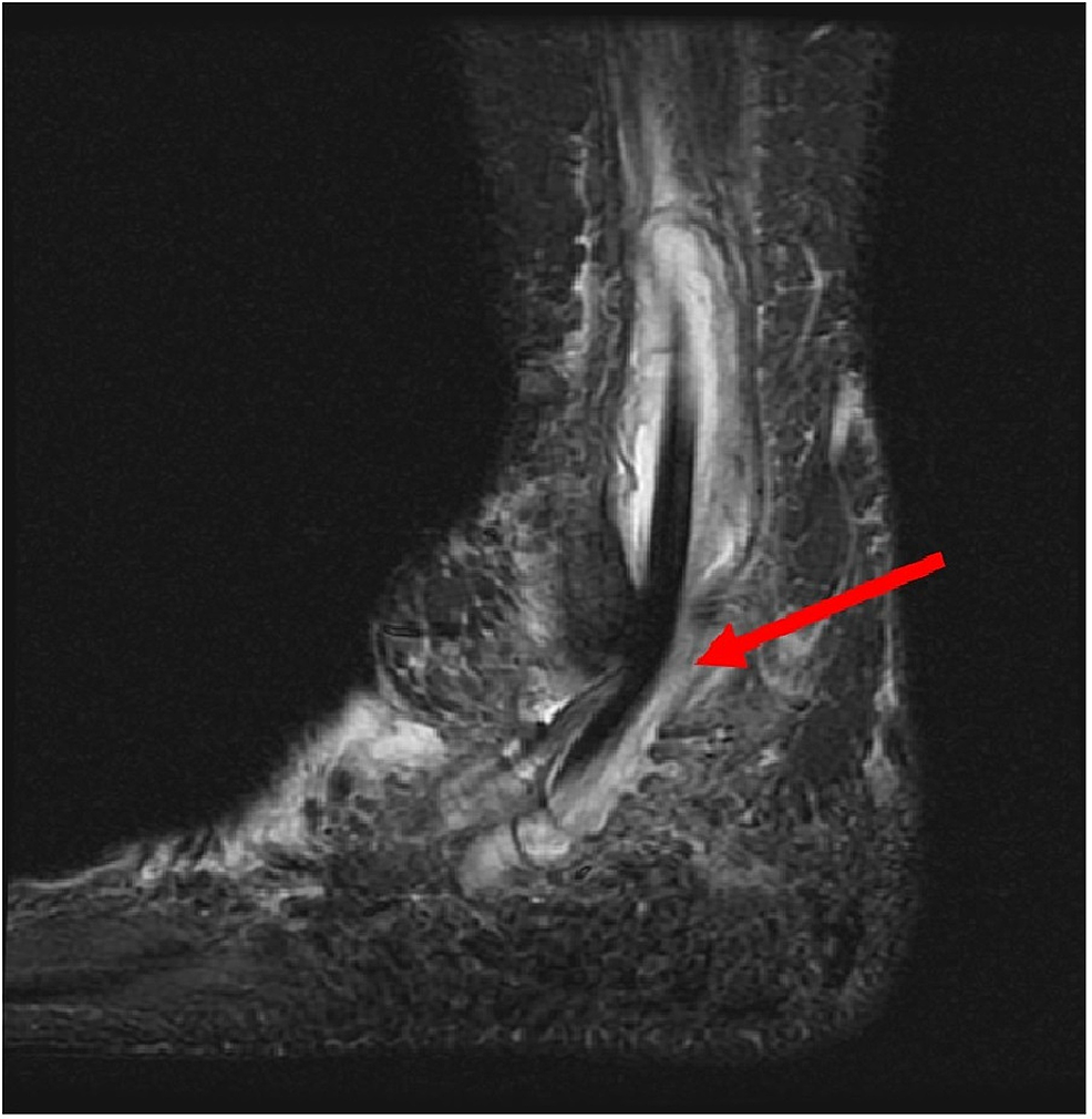 Lateral-3T-MRI-of-the-right-foot.