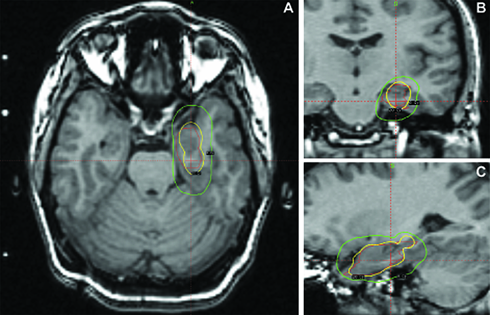 Preprocedural-MRI-for-radiosurgical-planning-with-superimposed-dosimetry-data.